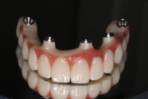 orthodontics Innaloo